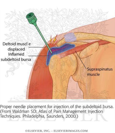 Shoulder Bursitis Exercises | Shoulder Bursitis | Pinterest