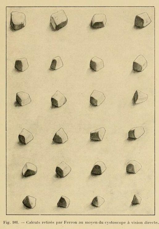 Fig. 101. Urinary tract stones removed by means of the cystoscope. Traité pratique de cystoscopie et de cathétérisme urétéral. 1914.