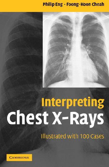 Chest x-rays pdf interpreting