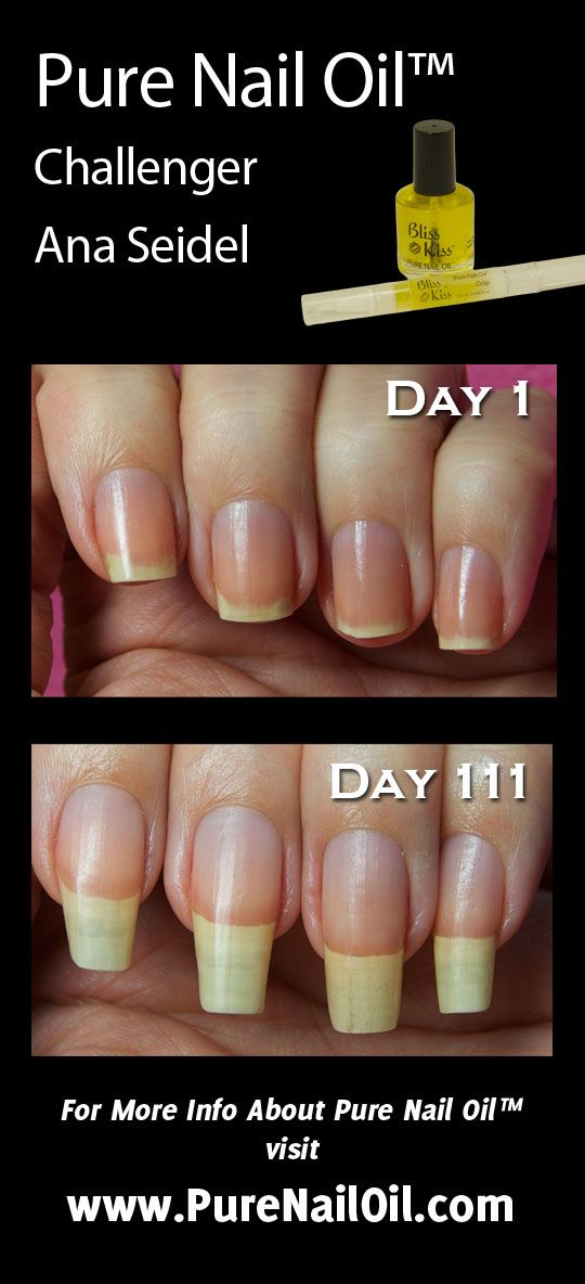 NAIL STRENGTHENER- Ana\'s Pure Nail Oil™ Challenge | Cuticle oil, Oil ...