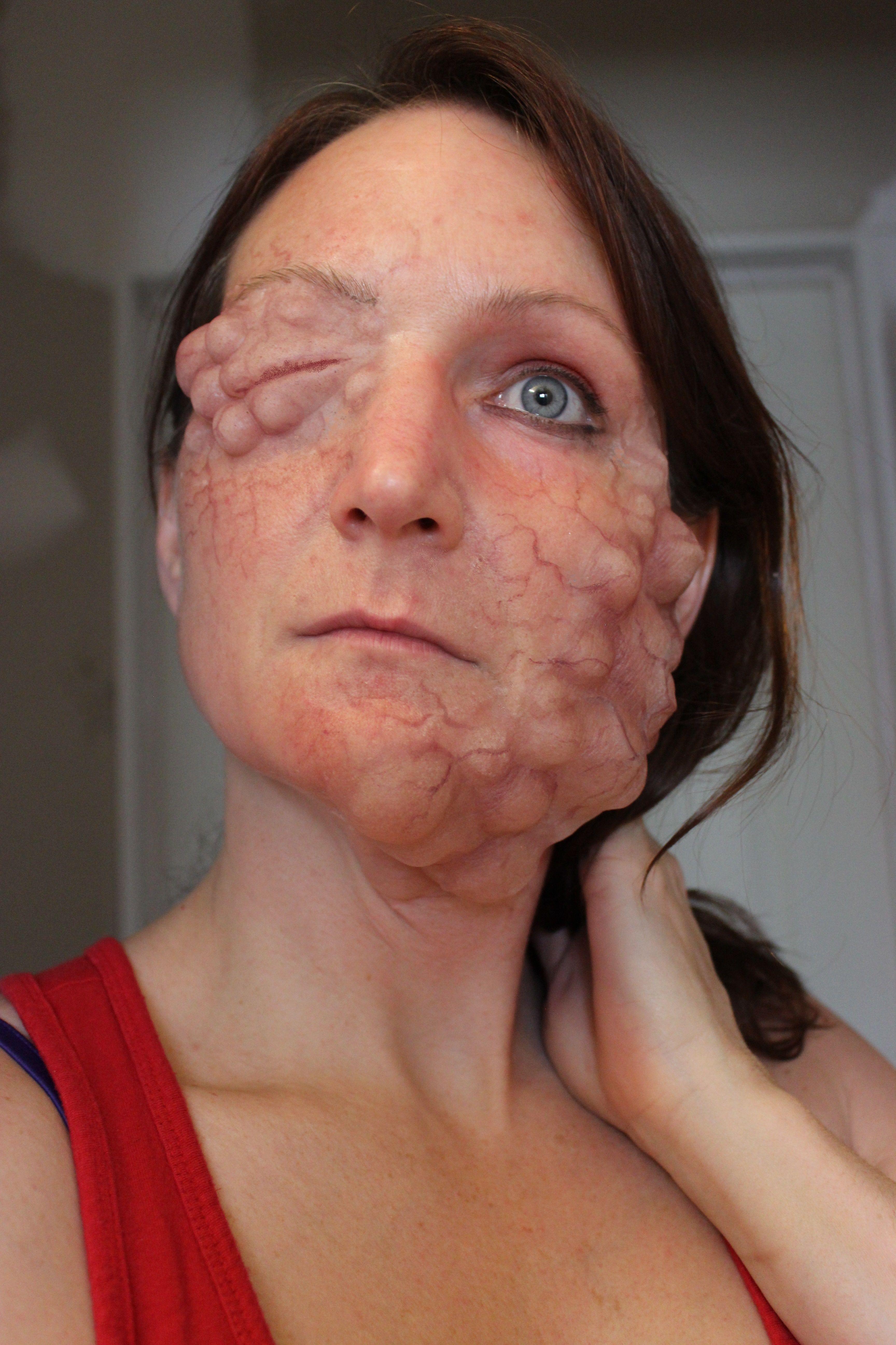Clusters of tumors!- Gelatin prosthetic makeup by Rhonda Causton ...