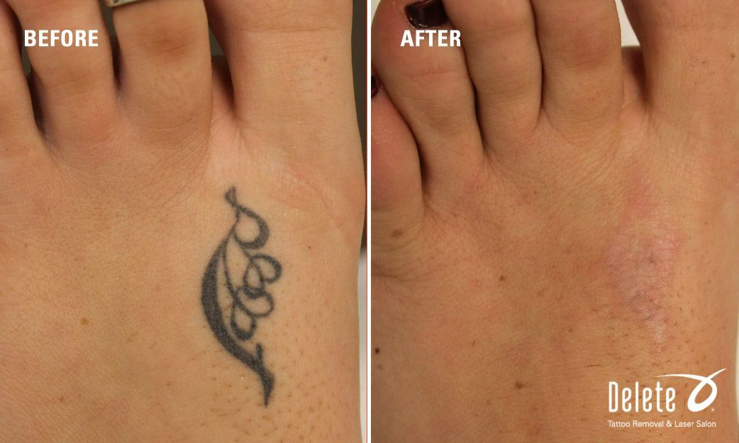 Black Tattoo On Top Of Left Foot Delete Currently Has Salons In Phoenix Az And Boston Ma Call For A Complimentary Consu Tattoos Tattoo Removal Tattoo Cream