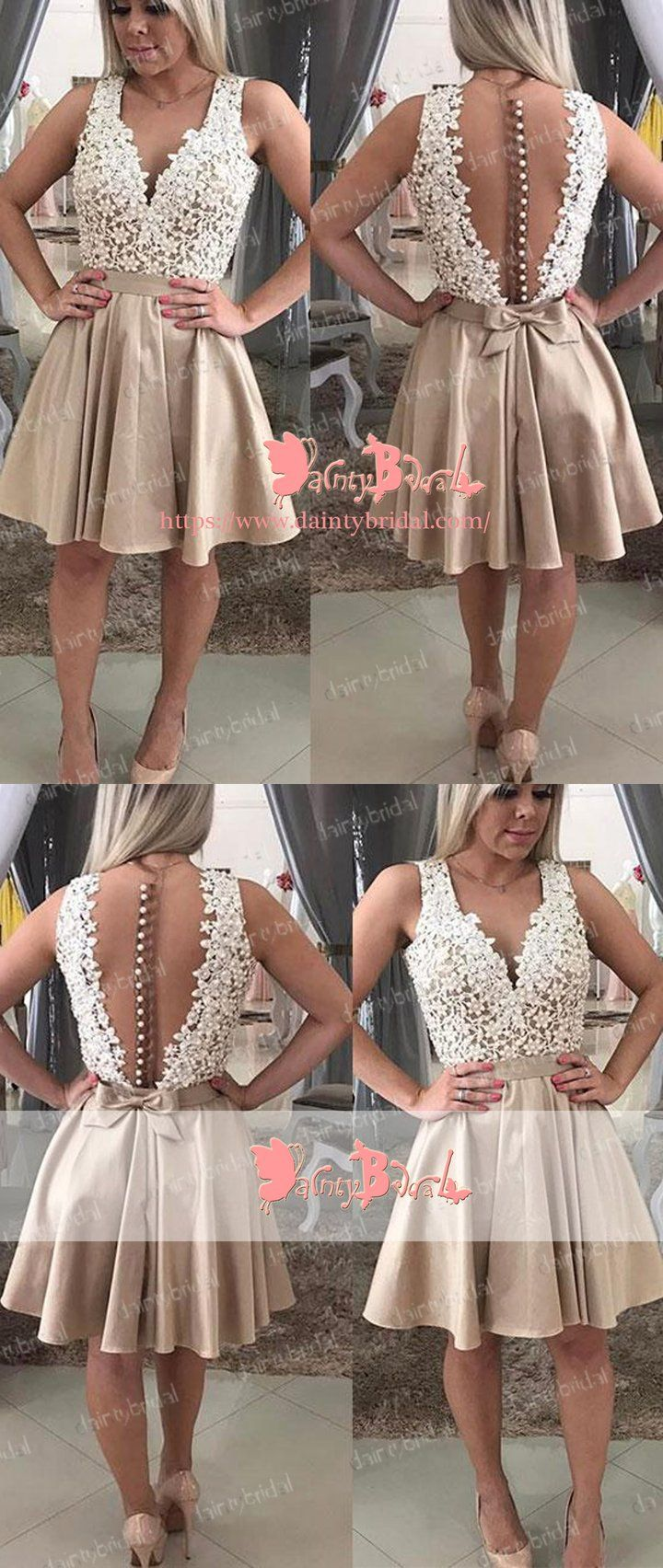Charming vneck see through back lace button knee length elegant
