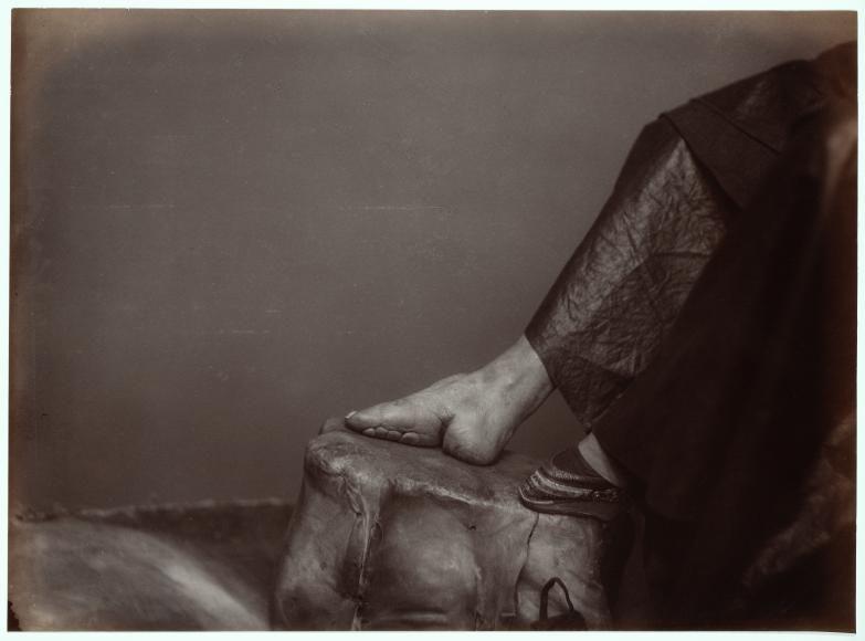 Pie De Loto Dorado Pie Vendado Afong Lai C 1870 Fotografía A La Albúmina Original 22 X 28 5 Cm Pies Uñas Pies Canones De Belleza