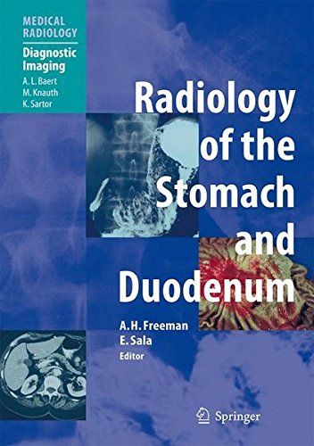 Download Free Radiology Of The Stomach And Duodenum Medical