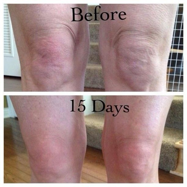 how to get rid of knee fat yahoo