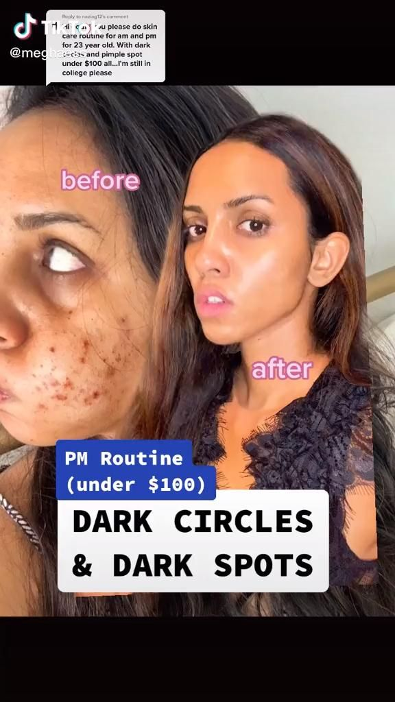 How To Get Rid Of Dark Spots On Your Face Video In 2020 Skin Care Best Acne Treatment Beauty Tips For Glowing Skin