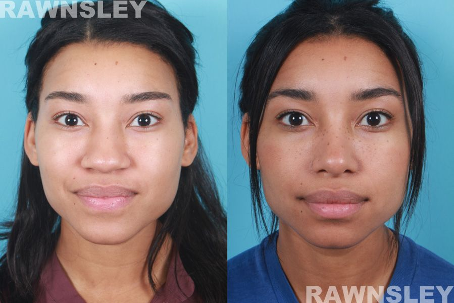 African American Rhinoplasty Before & After 1 Rawnsley