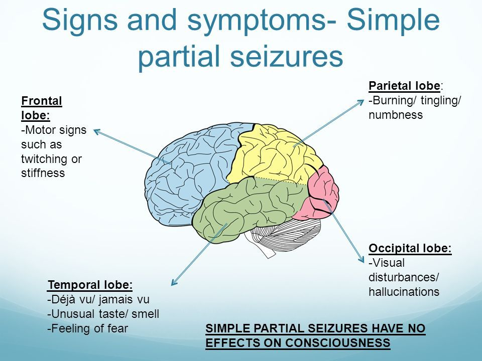 Pin by Xtina on My Brain AVM | Focal seizure, Epilepsy