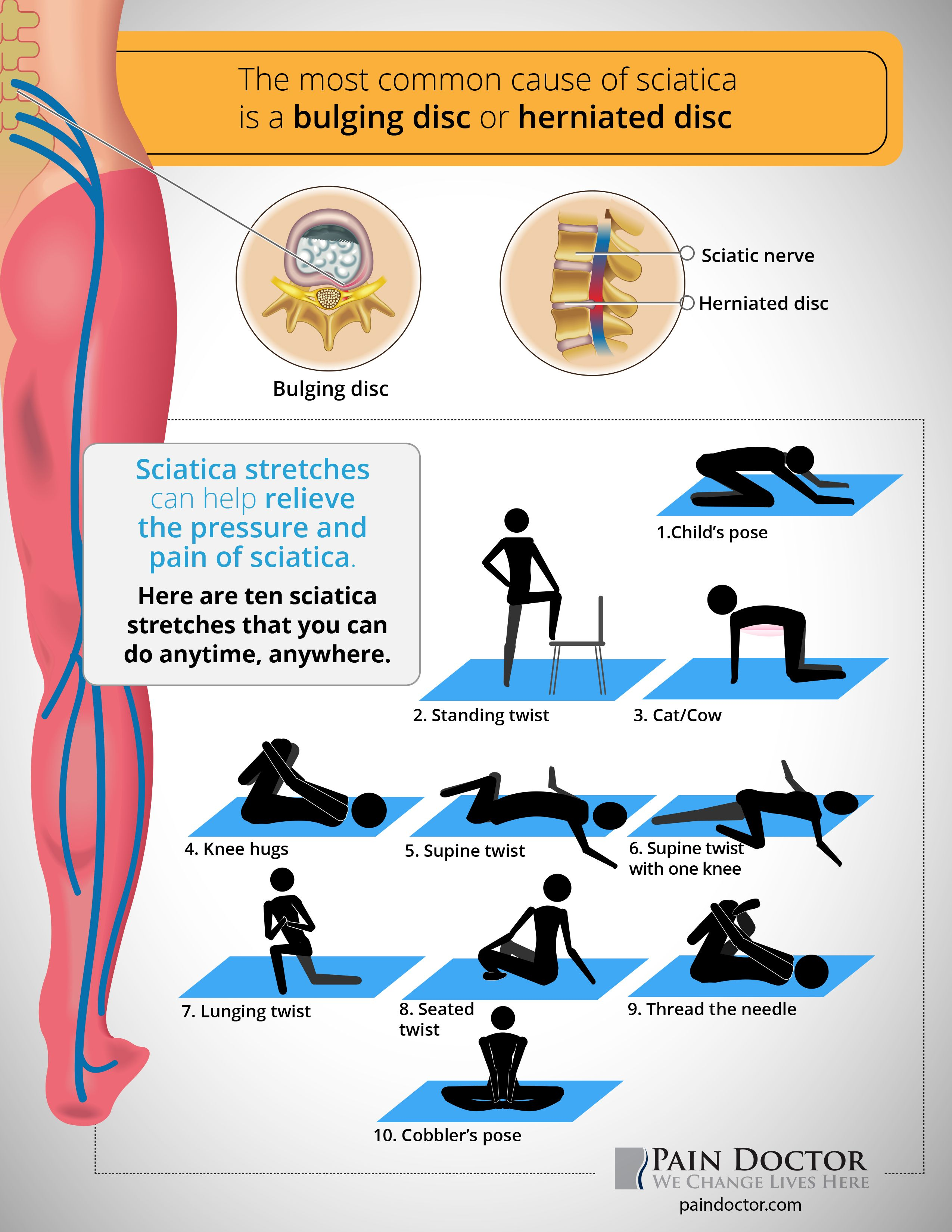 Pin On Sciatica Stretches