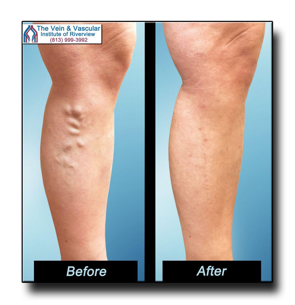 laser varicose vein removal