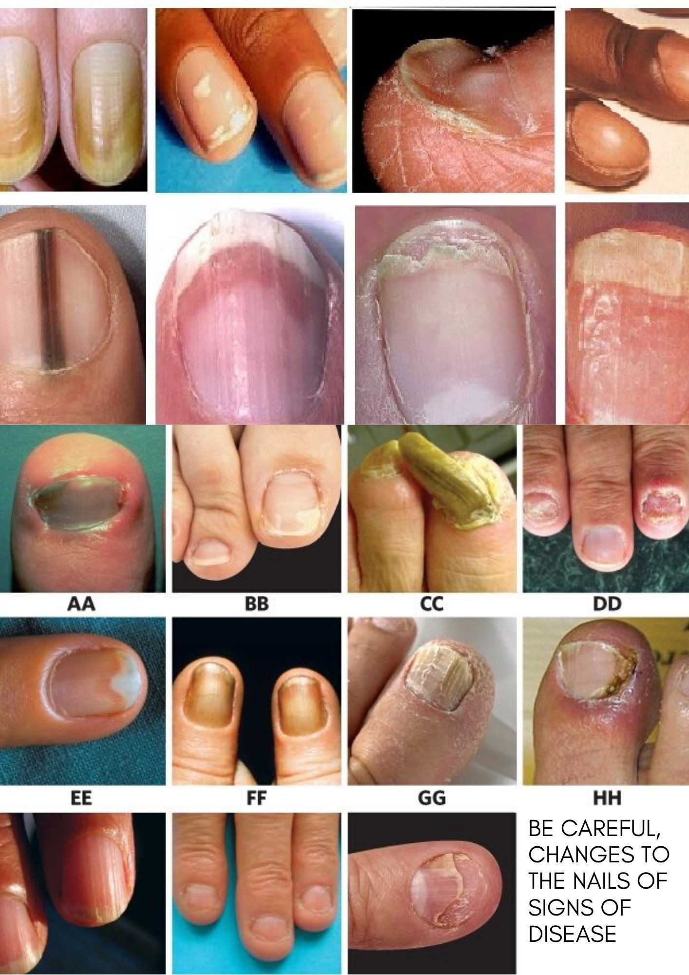 Have you ever experienced changes in nail shape without knowing why? Changes that occur in these nails can actually indicate a person's health condition.  health #nails #healthynails #healthliving #healthandwellness #homeremedies