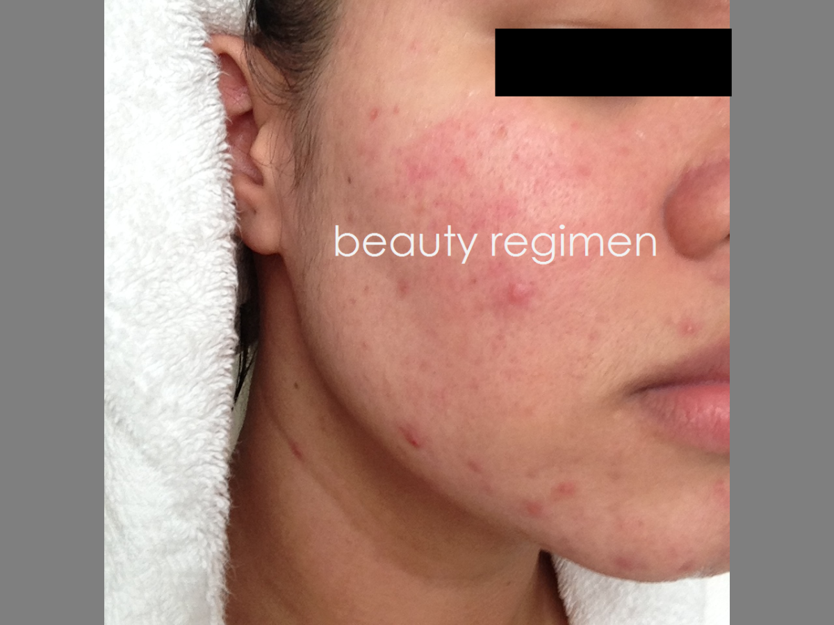 2e6d7a962a742d20bff7a74ba6948cb4 - How To Get Rid Of Small Acne Scars On Face