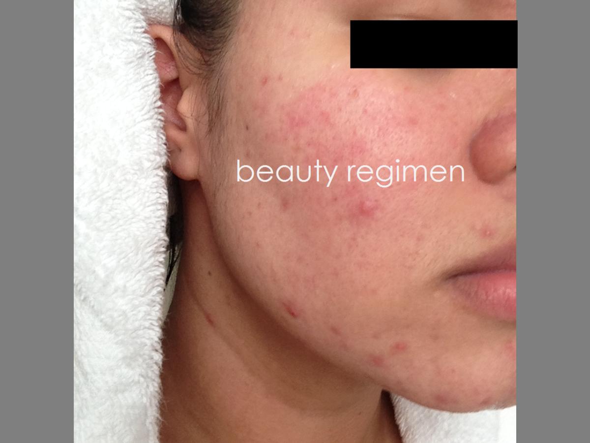 Pin On Beauty Regimen