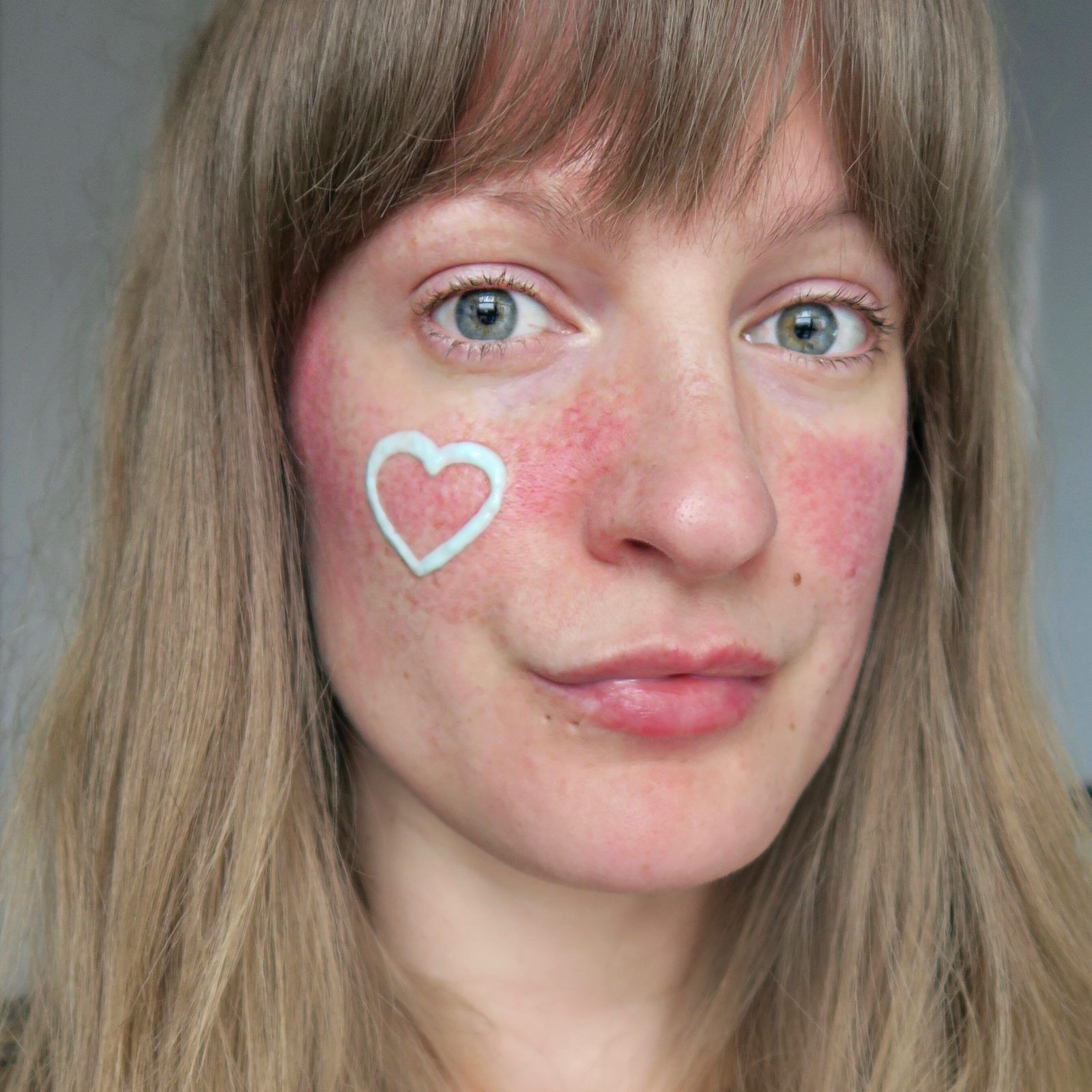 My Rosacea Story With Eau Thermale Avène AD Rosacea