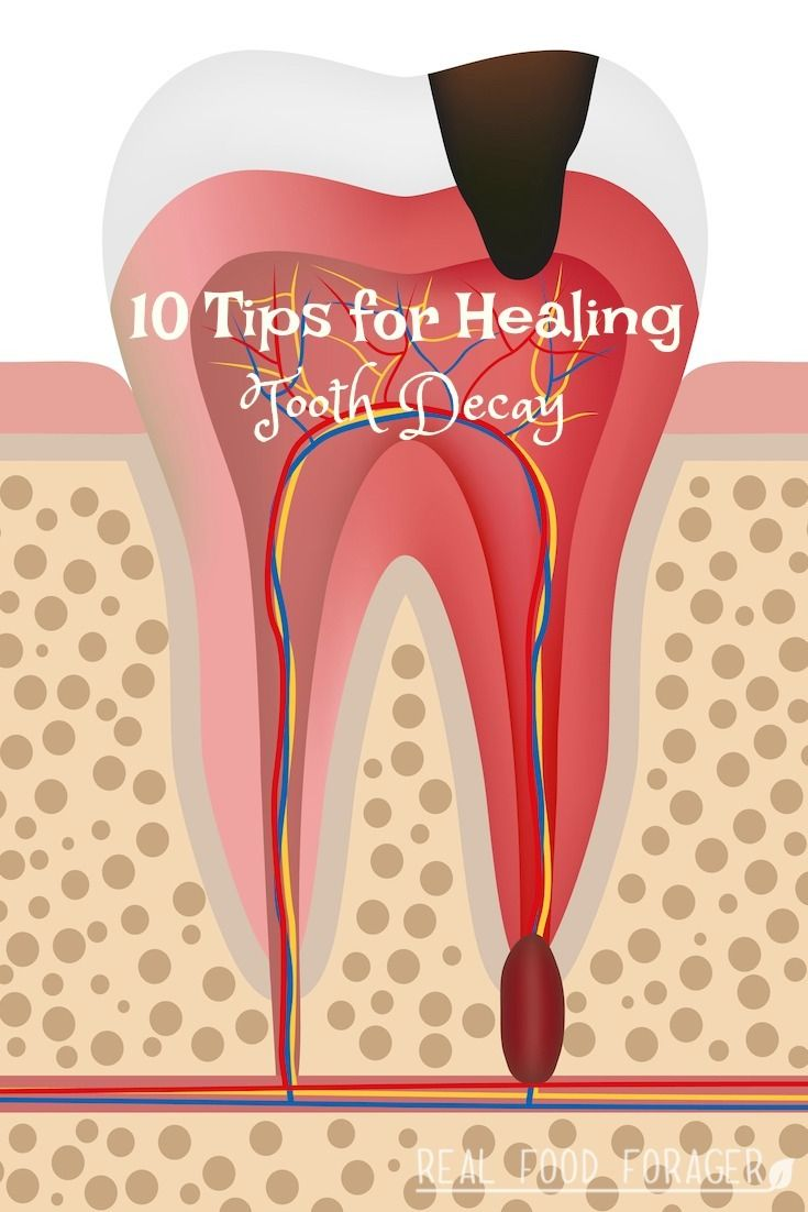 Tips for Healing Tooth Decay  teeth  Pinterest  Teeth Natural