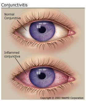 Pink Eye Conjunctivitis Treating Pink Eye Pink Eye Essential Oils