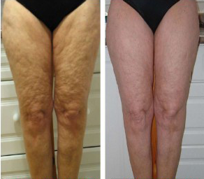 Cellulite Before And After Treatment Cellulite
