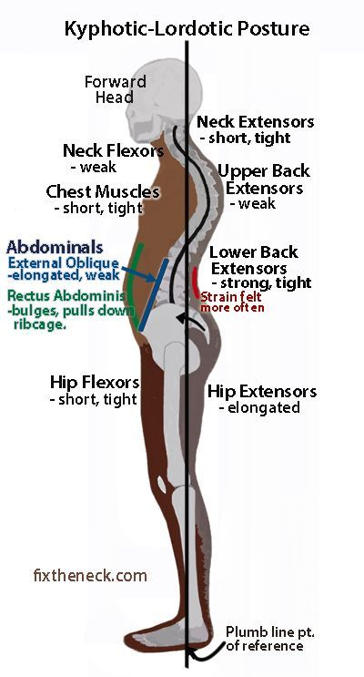Kephotic Lordotic Posture Physical Therapy Posture Fix