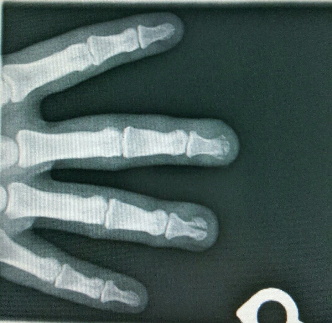 Fourth distal phalanx fracture under the nail bed is still