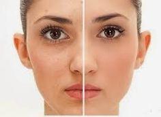 8 Remedios Caseros Para Las Manchas En La Cara Tratamientos De Belleza Tratamientos Faciales Manchas En La Cara
