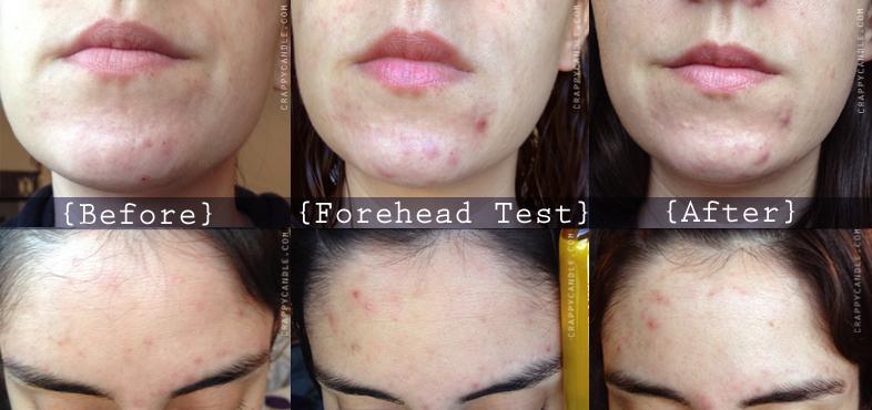 Aceite de jojoba para acne