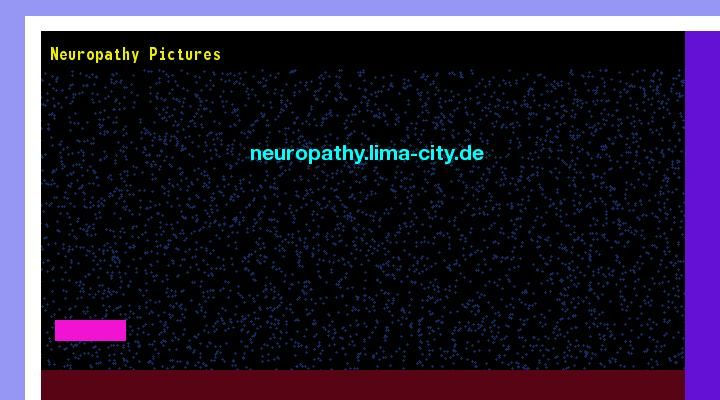 Patrick Daughlin posted Neuropathy pictures. Views 142930.
