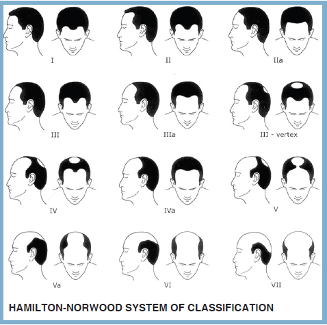 Hamilton Norwood System Of Classification Hair Loss Men Hair Loss Solutions Help Hair Loss