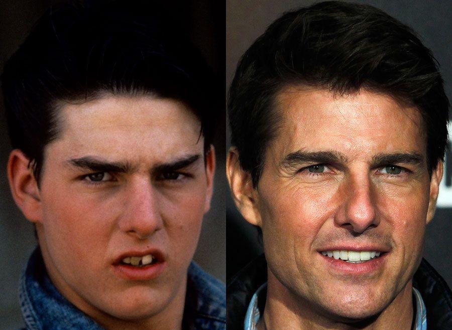 Celeb Teeth: Before & after Tom Cruise-whoa   Celebrity ...