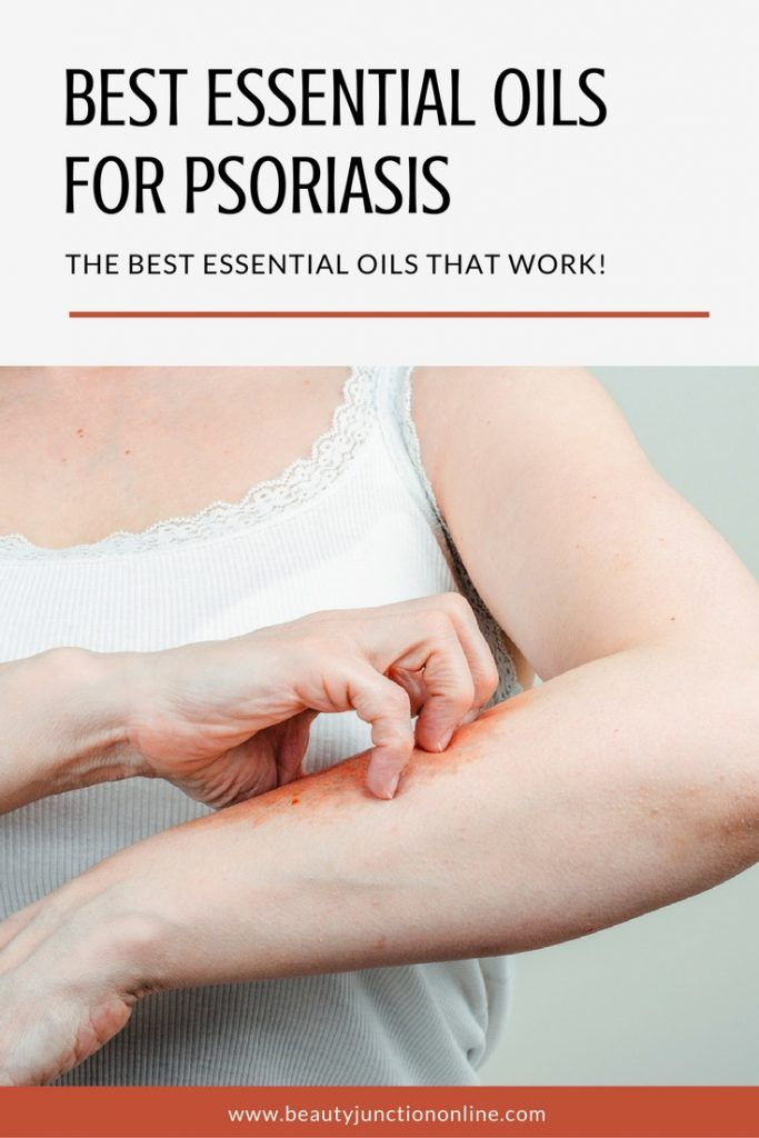 Best Essential Oils for Psoriasis- Revealed! Essentials, Oil and Nifty - essential oil for psoriasis