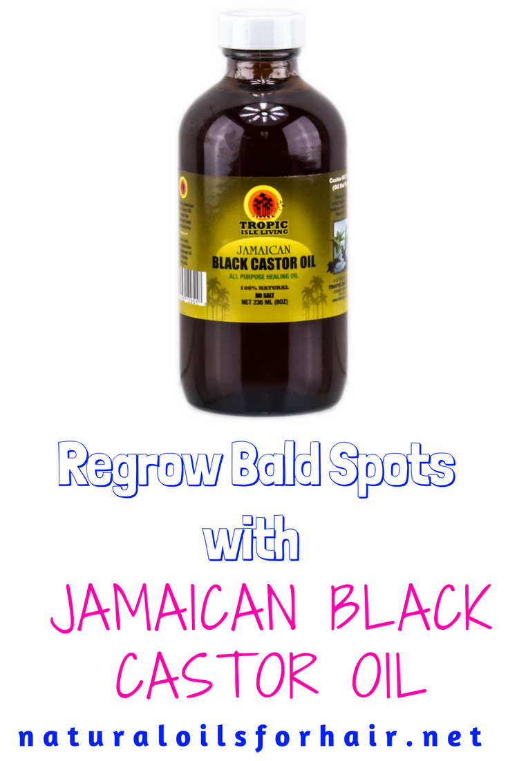 Regrow bald spots with jamaican black castor oil oils for natural