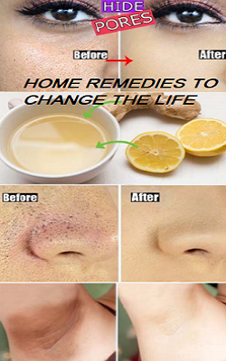 Image result for Home Remedies To Change The Life