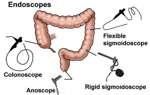 Extent of lower gi scopes note rigid sigmoidoscope 25 cm extent of lower gi scopes note rigid sigmoidoscope 25 cm flexible sigmoidoscope 60 cm average insertion length was 21 cm for the rigid and sciox Images