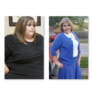 Weight loss due to cancer picture 1
