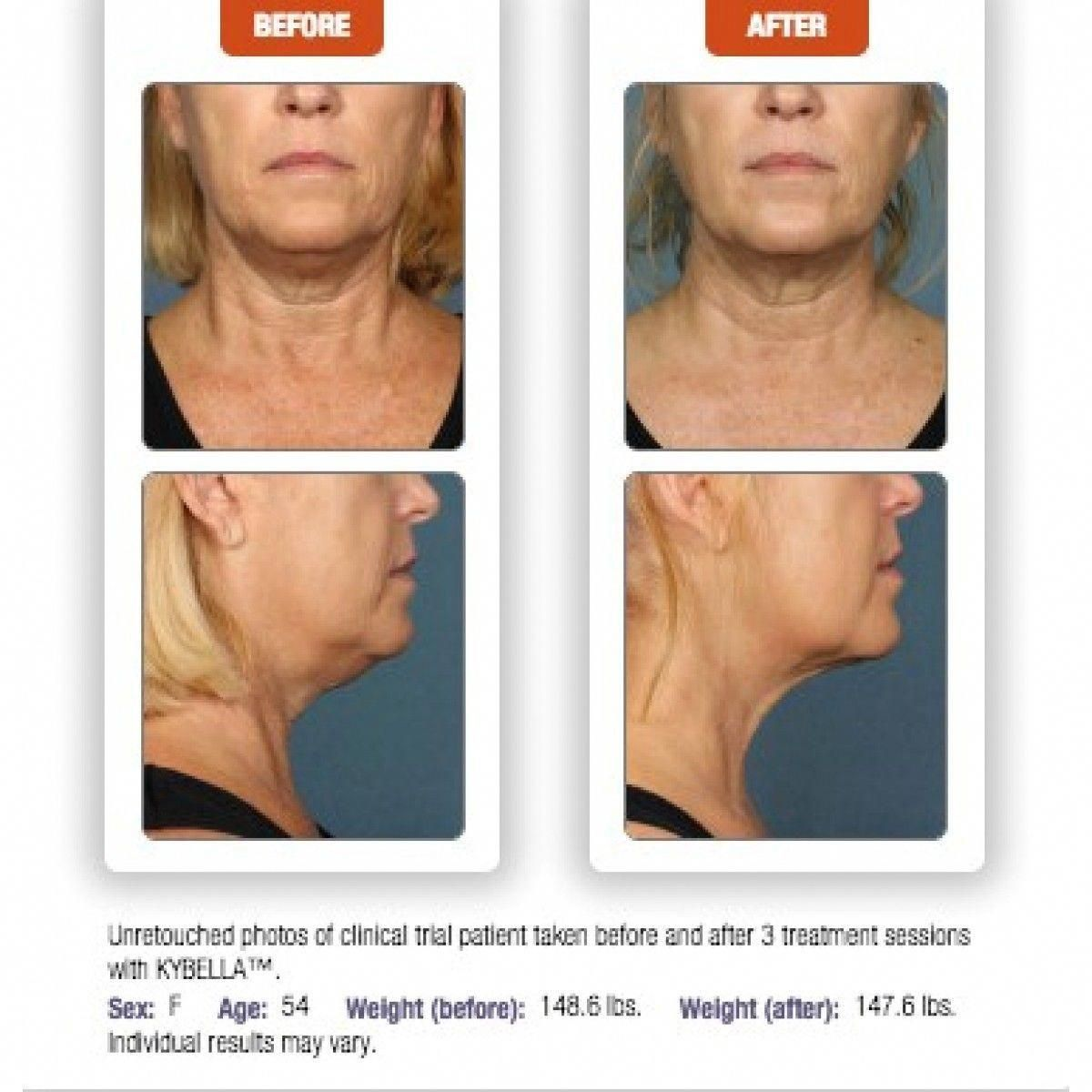 kybella before and after pics tattooremovalbeforeandafter