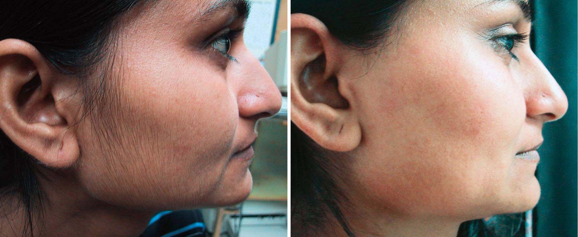 How To Get Rid Of Facial Hair Naturally Facial Hair And Remedies - Laser hair removal face
