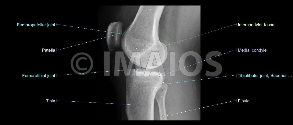 radiological atlas of the lower limb : radiograph of the knee ...