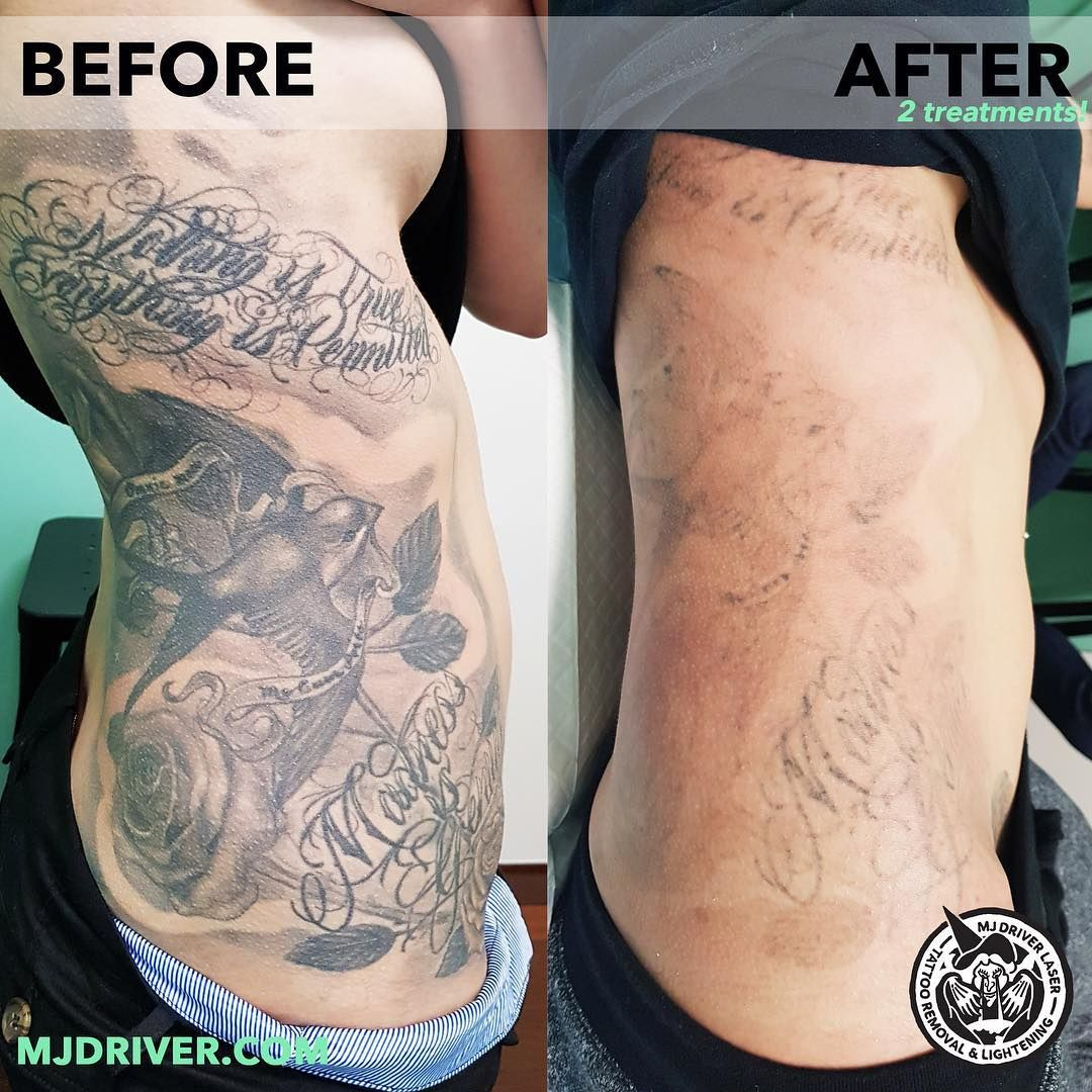 Laser tattoo removal at WA Ink by