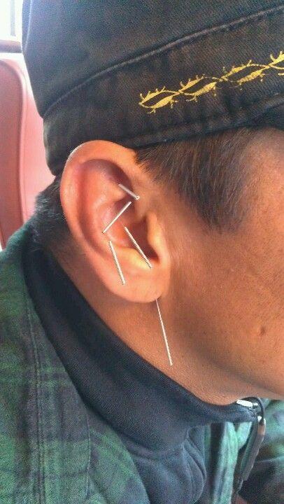 Ear acupuncture | Acupuncture, Acupressure