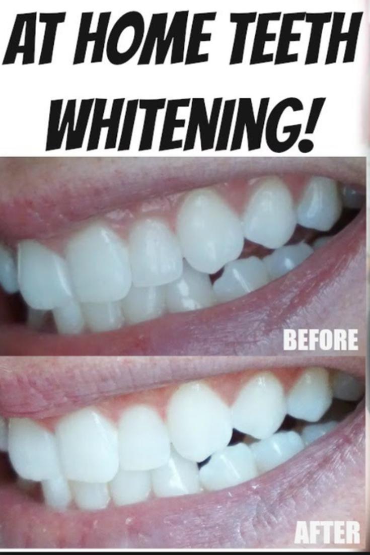 Pin On Magical Teeth Whitening
