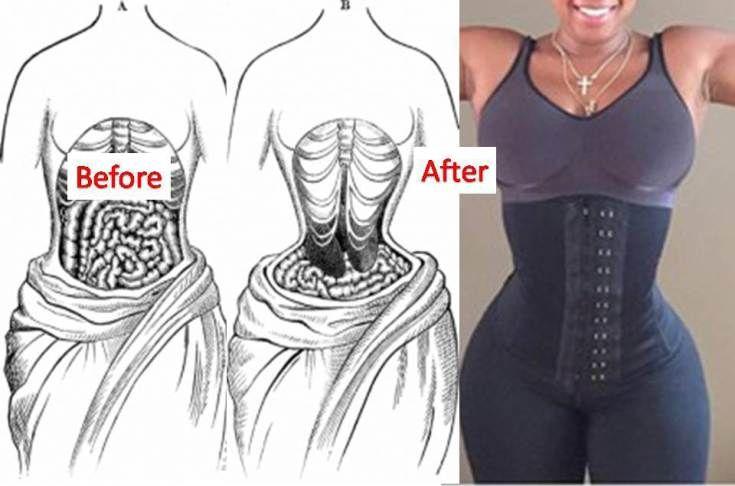ba8ab740003 waist training - the dangers