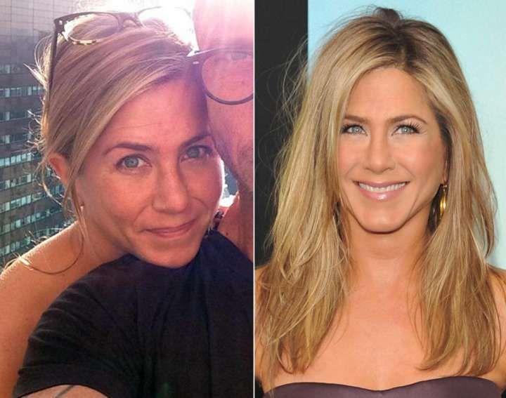27 célébrités qui n'ont plus du tout le même visage sans