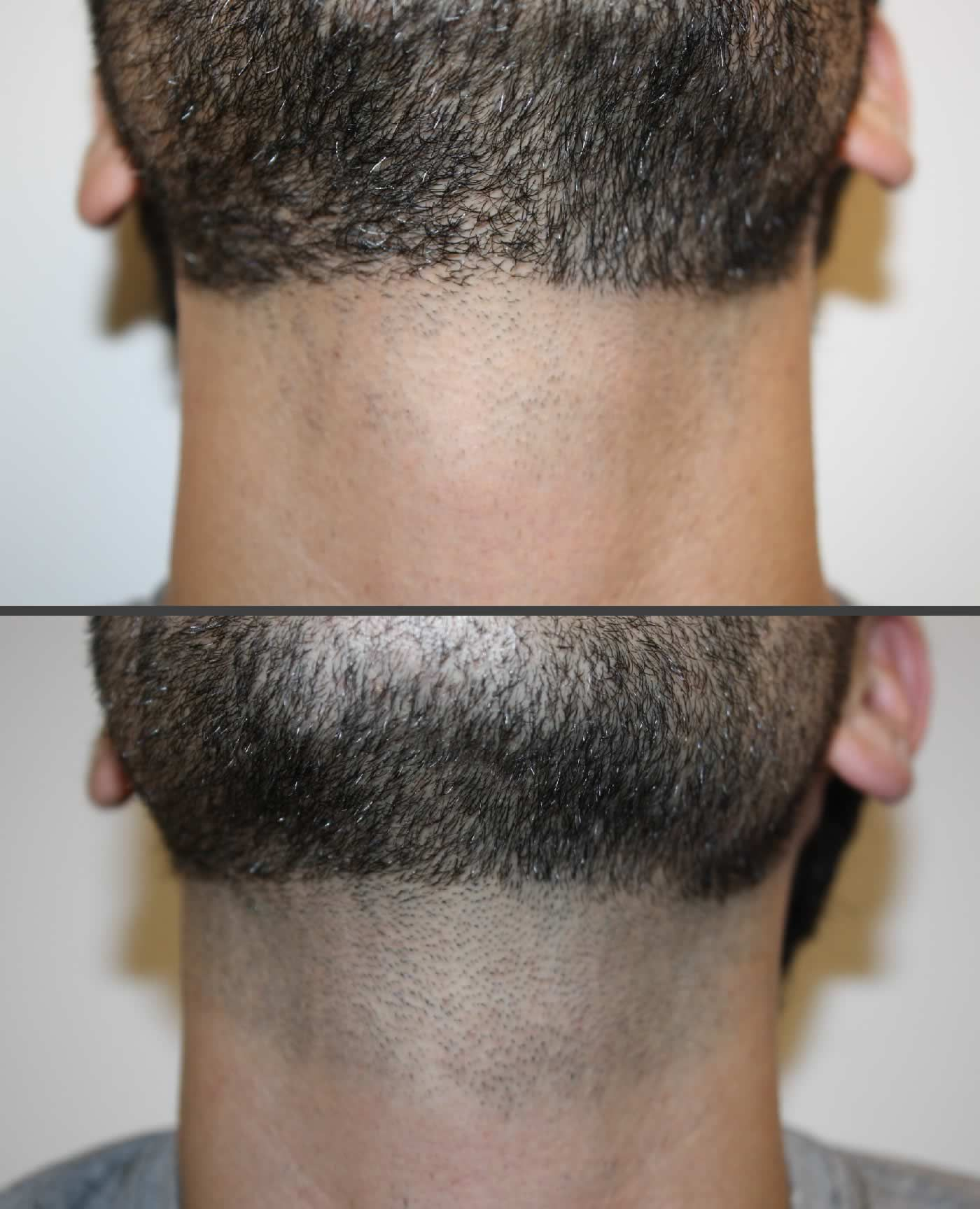 Laser Hair Removal Before After Neck Shino Bay Cosmetic