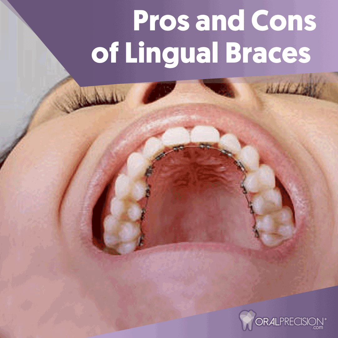 Lingual Braces Are Perfect For People Who Do Not Want To Show Wires And Supports From Braces When They Smile Because Lingua Lingual Braces Braces Braces Smile