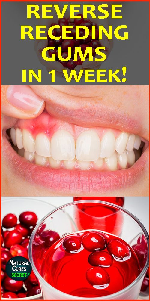 Grow Back Your Receding Gums Naturally In 1 Week Home Remedies Are