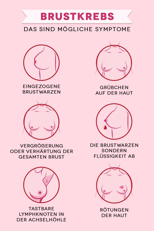 Brustkrebs: Risikofaktoren, Symptome, Früherkennung | familie.de #nursingstudents