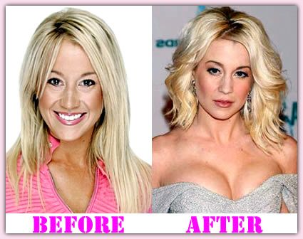 Kellie Pickler Before And After Weight Loss