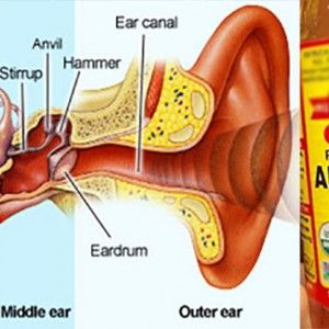 Apple Cider Vinegar Makes Tinnitus Go Away Here S A Quick Way To End Your Tinnitus Infection In Just 24 Hour Tinnitus Symptoms Tinnitus Cure Tinnitus Remedies