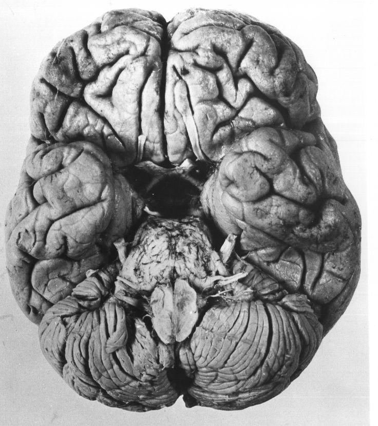 Image result for cool medical art | Schooled | Pinterest