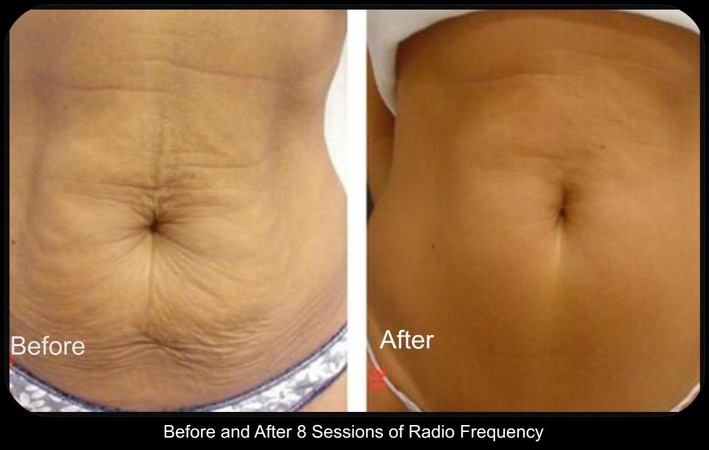3d Lipo Radio Frequency Before After 8 Sessions Special Offer On At The Minute Call Skin Tightening Radio Frequency Skin Tightening Skin Tightening Mask